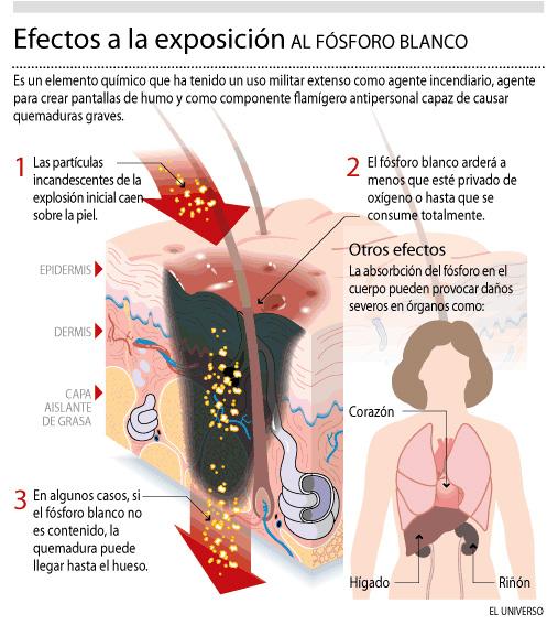 Efectos a la exposicion del fósforo blanco (infografía tomada de www.eluniverso.com)