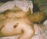 Bilal Achmed Ghanan, de 19 años, fue muerto a tiros y retirado por soldados israelíes. Su cuerpo fue devuelto, cosido desde el estómago hasta el mentón.