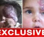 terriblo-fotos-de-ninos-iraquies-con-deformaciones
