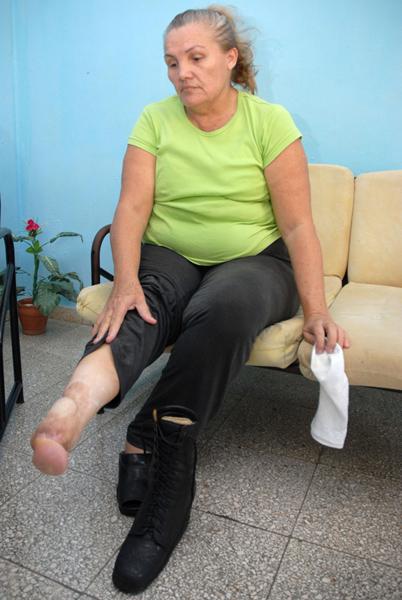 Nacy Pavón, muestra uno de sus pies amputado provocado por el ataque terrorista