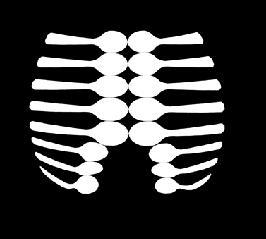 radiografia-del-hambre
