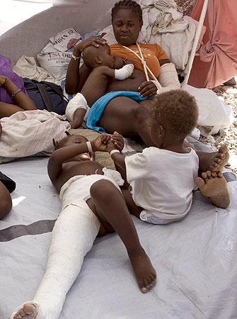 Las amputaciones se convierten en la práctica más general en Haití