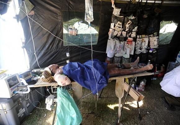 Hospital de campaña en Haití con mutilado por el terremoto. (Foto: AFP)
