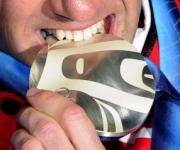 muerde-medalla-en-vancouver-2010