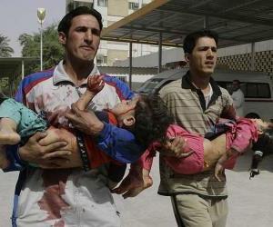 Niños heridos en Franja de Gasa. Foto de archivo