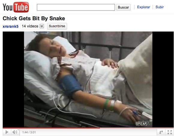 youtube-mordedura-de-serpiente