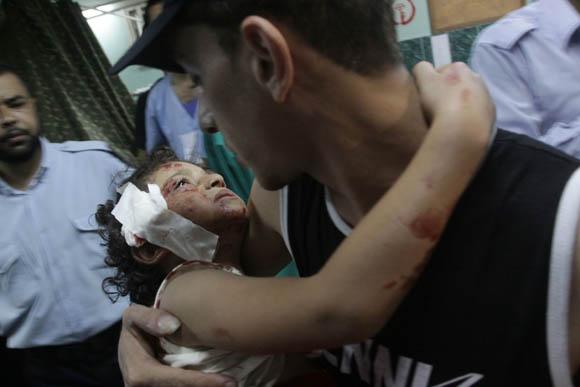 Heridos recibidos en el hospital de Gaza. Foto: AFP
