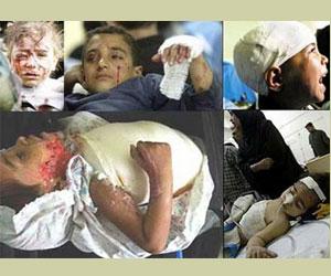 ONU acusa a EEUU de matar a cientos de niños en Afganistán con sus bombardeos