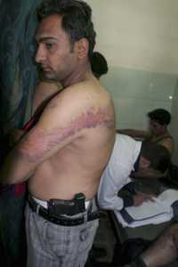 Imagen de archivo captada el 14 de noviembre de 2005 en el hospital Yarkouk de Bagdad, en donde aparece un policía iraquí que muestra las huellas causadas por la tortura. Foto Ap