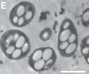 Bacterias resistentes a los antibióticos desafían a comunidad científica