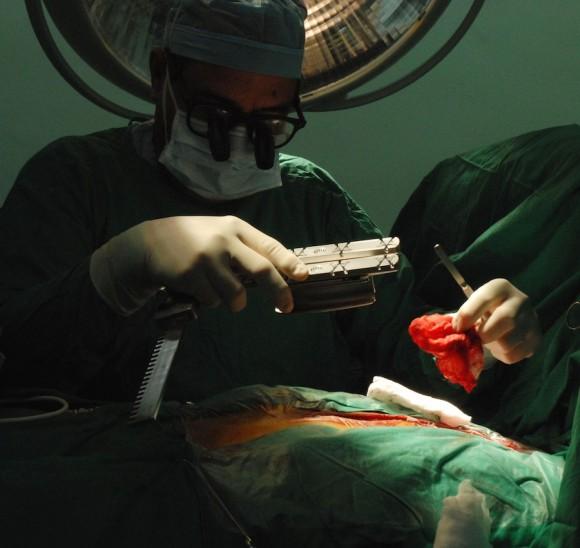 El Dr. Paredes maniobra para abrir el esternón. Foto: Juvenal Balan