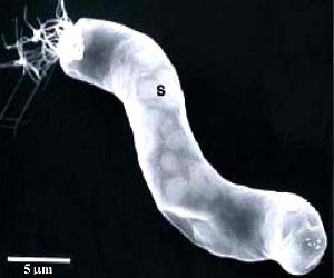 La fotografía micoscópica al meteorito CI1 muestra una estructura  similar al de la bacteria gigante Titanospirillum velox, un organismo  que está en la Tierra.
