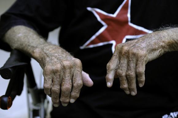 La estrella roja de Alberto Granado. Foto: Roberto Chile