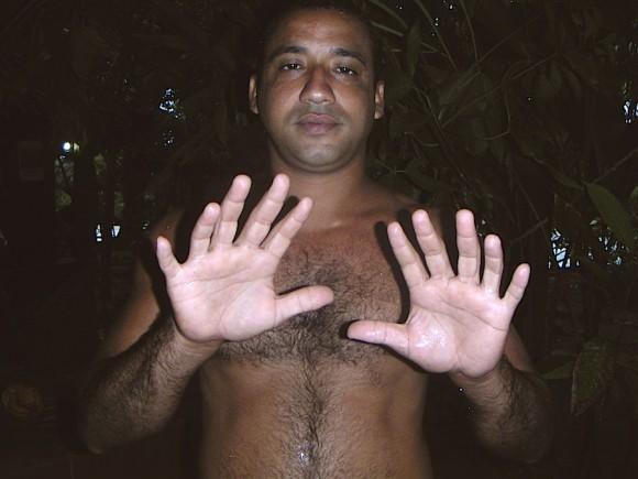 Un cubano de Baracoa tiene 24 dedos