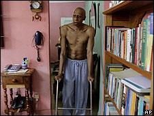 El huelguista de hambre profesional, Fariñas. Foto: AP