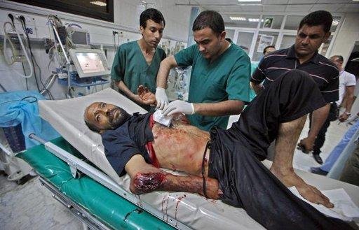 LIB14. TRÍPOLI (LIBIA), 19/06/2011.- Un hombre libio, herido tras un ataque aéreo supuestamente efectuado por tropas de la coalición, permanece en una camilla de hospital hoy, domingo 19 de junio de 2011, en Trípoli (Libia). EFE/MOHAMED MESSARA/FOTOGRAFÍA TOMADA DURANTE UNA VISITA GUIADA POR EL GOBIERNO LIBIO