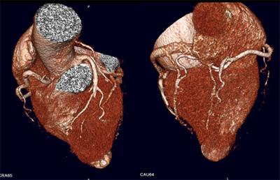 Imágenes de Coronariografía por Tomografía multicortes.