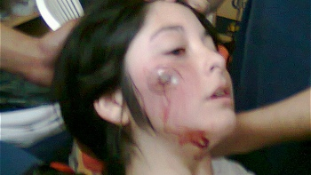 Joven baleada en la protesta de ayer.