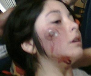 Una joven chilena herida por una bala de goma de Carabineros.