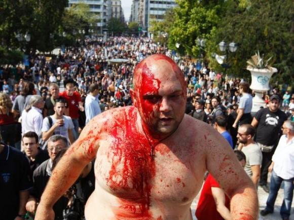 Víctima de la represión en Atenas. Foto: Future Press
