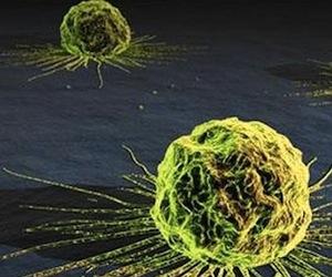 Científicos descubren gen responsable de cáncer de pulmón