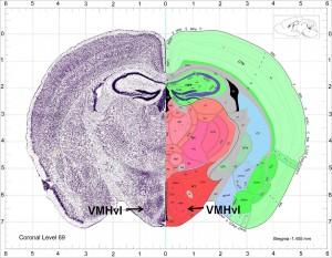 allen-brain-atlas-300x233