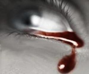 sindrome-gardner-diamond_lagrimas-de-sangre1
