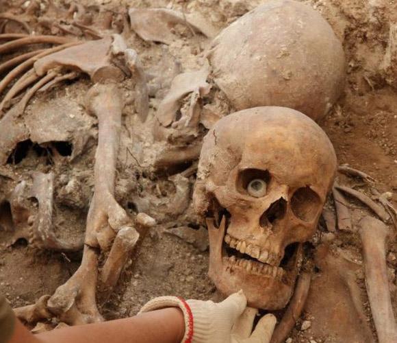 Ojo de cristal hallado en la fosa de Gumiel de Izán (Burgos) con 59 cuerpos. Las lesiones y defectos ayudan mucho a los forenses a la hora de identificar a las víctimas