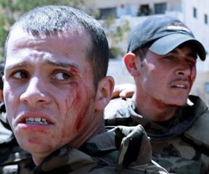 Dos de los soldados heridos por la explosión. Foto: Louai Beshara/AFP.