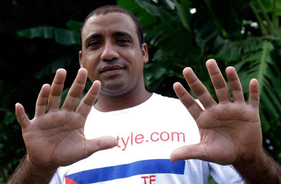 Yoandry Hernández Garrido, apodado por Veinticuatro, un baracoeso que tiene 24 dedos. Foto: Ismael Francisco/Cubadebate.