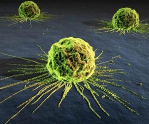 En 7 años casi la mitad de la población de Reino Unido tendrá cáncer