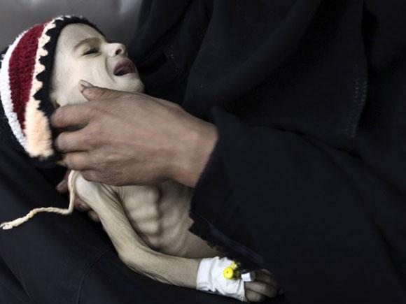 Yemen: Una madre sujeta a su hijo desnutrido en el hospital de Sanaa. Foto: REUTERS/Mohamed al-Sayaghi.