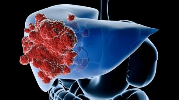 Un fármaco consigue mejorar un 38% la supervivencia en pacientes con cáncer de hígado
