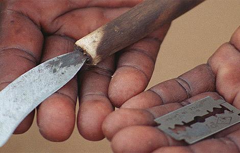 cicuncision femenina