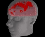 cerebro infectado con ameba