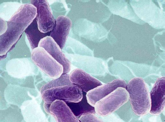 """Bactería Escherichia coli Imagen tomada con un telescopio electrónico de una cepa de la bactería Escherichia coli, en Braunschweig (Alemania). (EFE) La E. coli fue considerada una bacteria """"asesina"""", pero parece que"""