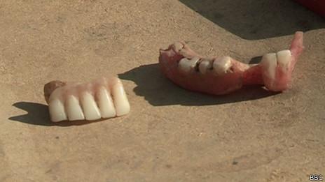 Se ha cuestionado la seguridad e higiene de los dentistas callejeros.