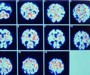 Serie de imágenes del cerebro de un paciente de Alzheimer. Foto: El País.