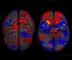 Cerebro del hombre es más grande que el de la mujer