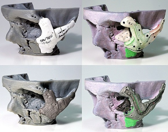 Reconstrucción craneal a través del uso de la impresora 3D. Foto: AFP