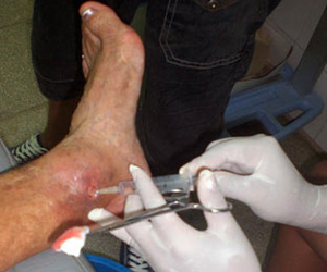 Aplicación del Heberprot-P, en pacientes que padecen de úlceras del Pie Diabético, en el policlínico municipal de Majagua, en la provincia de Ciego de Ávila. Foto: Lubia ULLOA TRUJILLO/ACN