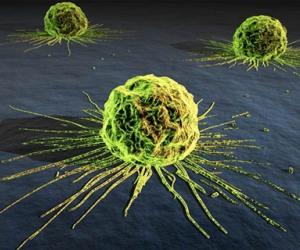 Por estilos de vida saludables en lucha contra el cáncer.