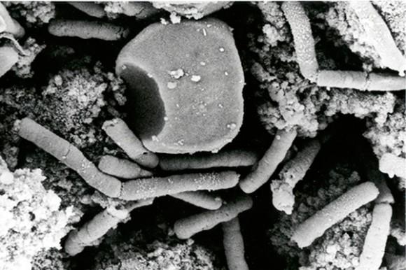 La imagen muestra esporas o células vegetativas de ántrax, que causan el carbunco al llegar a los pulmones. Foto: AP/Anthrax Vaccine Immunization
