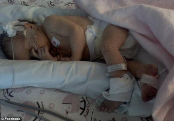 Tras ser golpeada hace un año por un rayo, bebé mantiene electricidad estática en su cabello. Foto: Daily Mail.