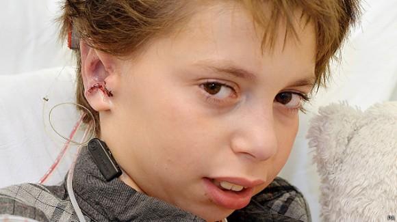 Kieran nació sin las dos orejas. Foto: BBC Mundo
