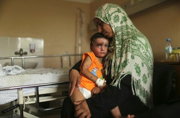 Un niño palestino que sufrió heridas en un bombardeo israelí, se recupera de sus heridas en el hospital Shifa, en Gaza, el 14 de agosto de 2014. Foto: Reuters.
