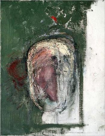 alzheimer 1999