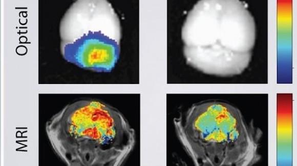 Un tumor en el cerebro del ratón fotografiado usando nanopartículas (izquierda) en comparación con las técnicas convencionales (derecha)