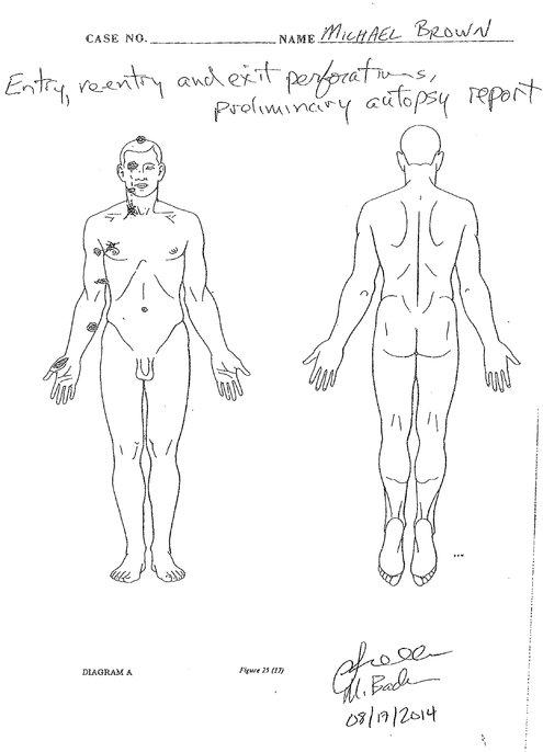 la autopsia de brown