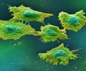 Células cancerígenas.